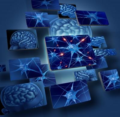 Brain (4)